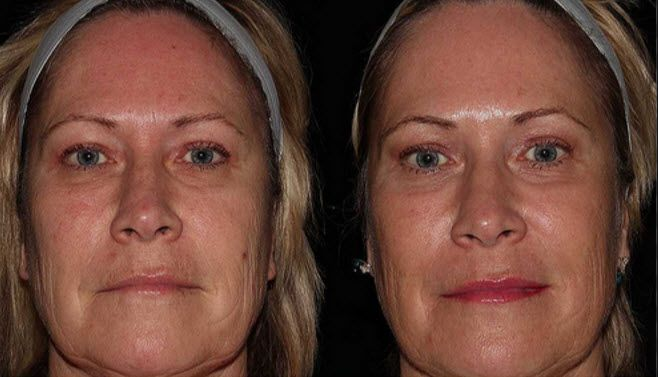 """Fractionated CO2 laser treatments offer you a """"face lift without the face lift"""".  #calgary #laser"""
