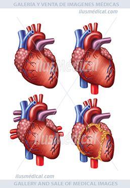 Venas y arterias del corazón humano. Ilustración en la que podemos ver cuatro versiones del corazón con ...