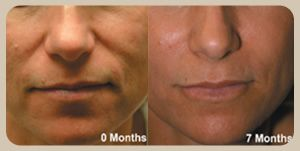 Refirme Laser Skin Tightening in San Jose Tighten droopy or saggy skin on the face or body. Foto Facial or Laser Facial San Jose