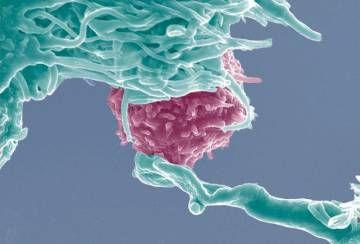 Las células T (en azul) serán modificadas para atacar las células del cáncer (en rosa) mediante CRISPR.