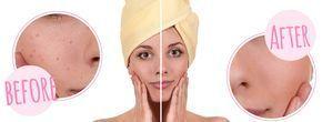 Backpulver gegen Pickel und Akne-Narben! Es klingt äußerst gewöhnungsbedürftig, doch Makeup-Artists schwören darauf! Es hilft nicht nur große Poren zu beseitige