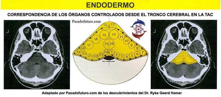 TAC Organos Endodermo Tronco Cerebral Nueva Medicina Germanica Hamer 3ra Ley Biologica Sistema Ontogenetico