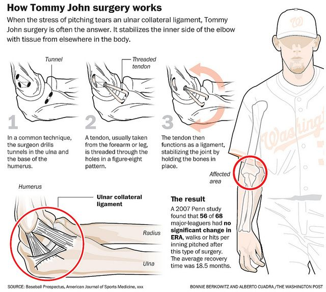patient tommy john Tommy john surgery: who's had it 9 / 14 back next  devised a technique to repair the tear using tendons taken from elsewhere in the patient's body the procedure is known as tommy john.