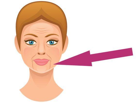 """Als """"Marionetten-Mund"""" werden die vertikal-verlaufenden Falten zwischen Mundwinkel und Kinn bezeichnet. Wie Sie ihm vorbeugen oder dagegen vorgehen können."""