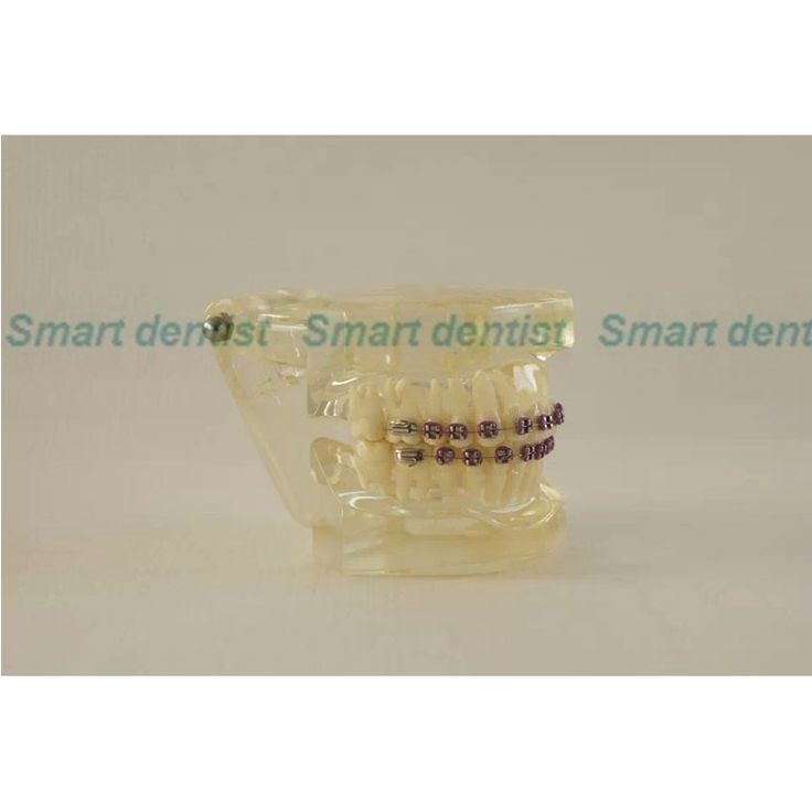 47.49$  Buy now - http://ali6if.worldwells.pw/go.php?t=1000001892640 - 2016  Dental Orthodontics Typodont Teeth Model Half Metal Half Ceramic Brace Typodont with Arch Wire