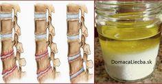 Zápaly a bolesti kĺbov či chrbtice bývajú pomerne časté a dosť nepríjemné. Našťastie, existuje na ne jedna jednoduchá a extra účinná kúra.
