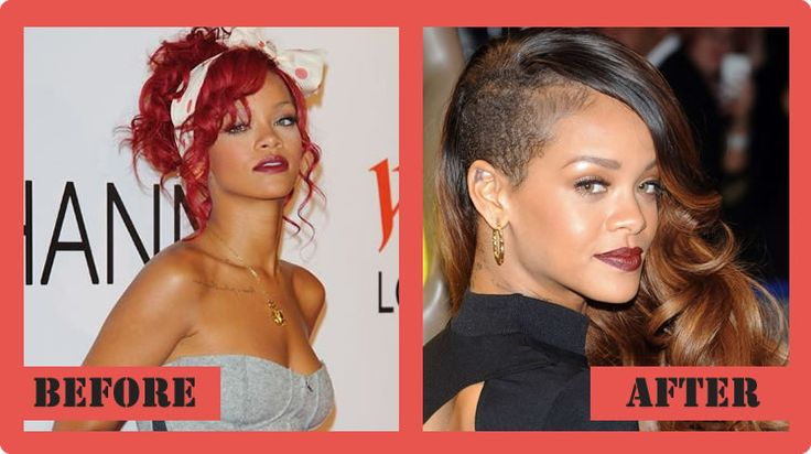 Rihanna Plastic Surgery Before And After Rihanna Plastic Surgery  #Rihannaplasticsurgery #Rihanna #celebritypost