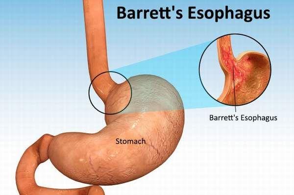 Natural Treatment For Barrett S Esophagus Diet