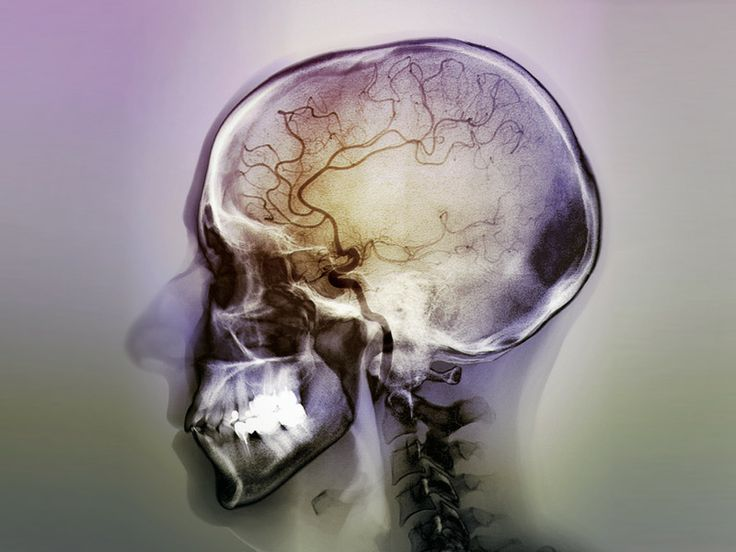 """New Epilepsy Definition Adopted.  The International League Against Epilepsy (ILAE) has expanded the definition of epilepsy to incorporate a single unprovoked seizure with a probability of future seizures.  The new definition also stipulates that epilepsy can be considered """"resolved"""" if a patient has been seizure-free for 10 years, with no seizure medicines for the last 5 years."""