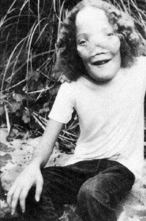 "Roy Lee ""Rocky"" Dennis (1961 - 1978) - Find A Grave Photos"