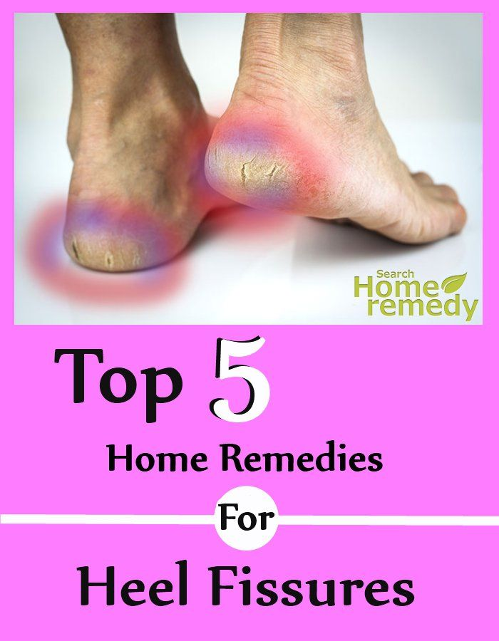 Top Five Home Remedies For Heel Fissures