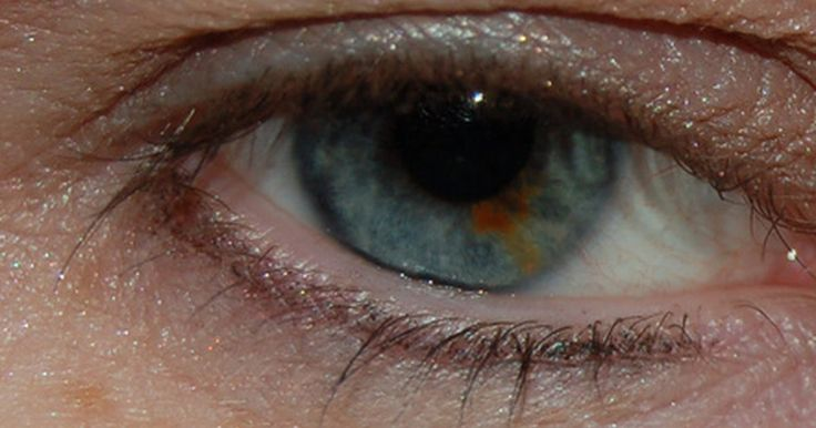 Puntos negros en la parte blanca del ojo. Cuando aparece un lunar o una peca en la parte blanca del ojo, o esclera, llama más la atención y puede generar preocupaciones acerca de un problema de salud. Estas pecas por lo general no son dañinas. Si el punto aparece de repente, entonces, se puede tratar de una señal de cáncer maligno.