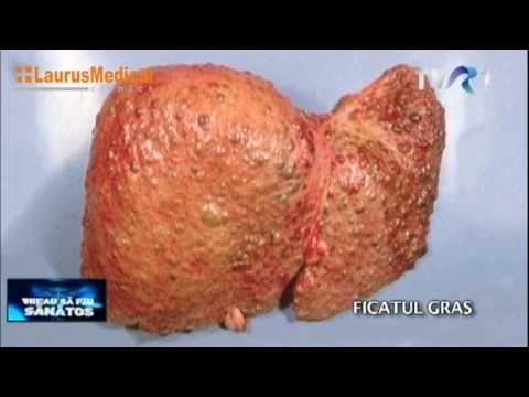 Cum regeneram ficatul (Agenda Ta De Sanatate) - YouTube