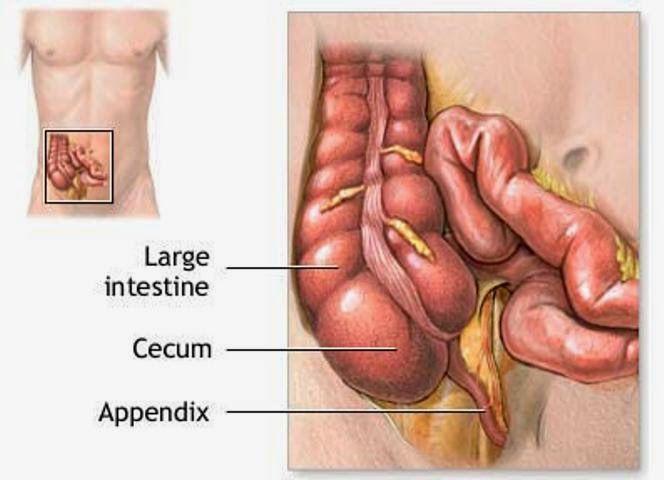 Penyebab sakit usus buntu merupakan sebuah kejadian atau masalah yang terjadi pada organ usus buntu, biasanya terjadi iritasi atau peradangan sehingga menimbulkan rasa sakit pada bagian bawah perut. Sebelum kita mengulas penyakit usus buntu mari kita simak fungsi dan definisi penyakit usus buntu.