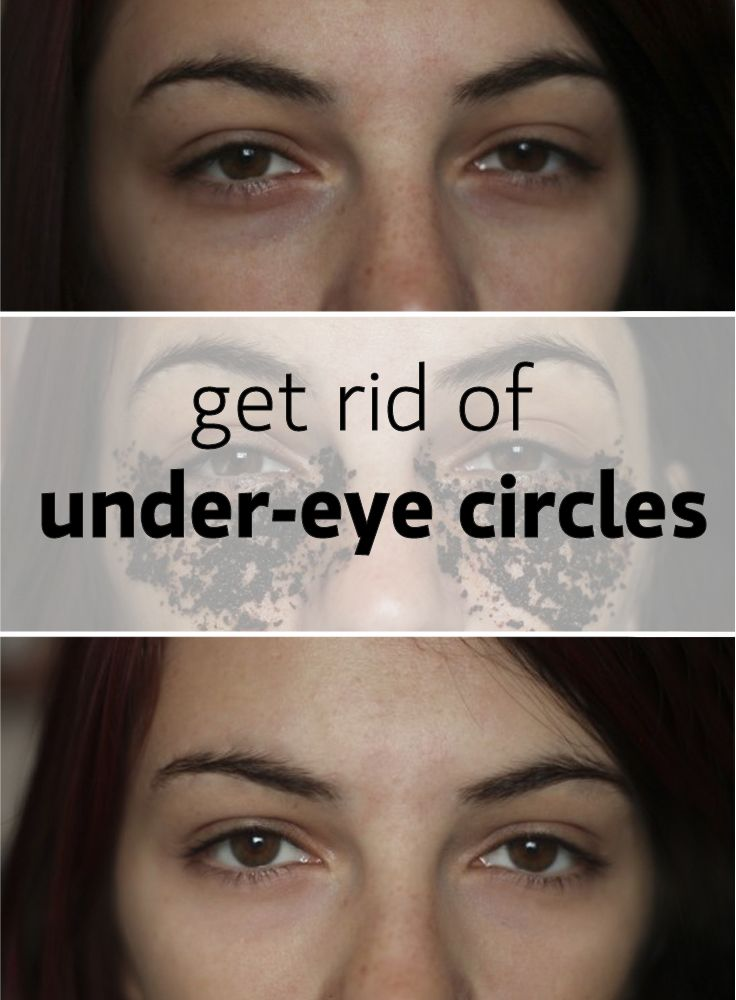 Under Eye Makeup Brush: 1000+ Ideas About Under Eye Bags On Pinterest