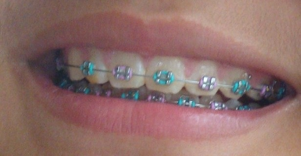 Purple and turquoise! | Braces for karli | Pinterest ...