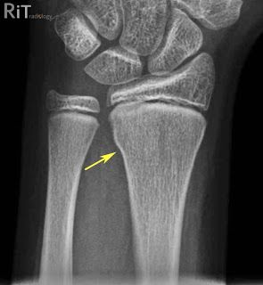 Buckle Fracture Distal Radius | Buckle (Torus) Fracture of the ...