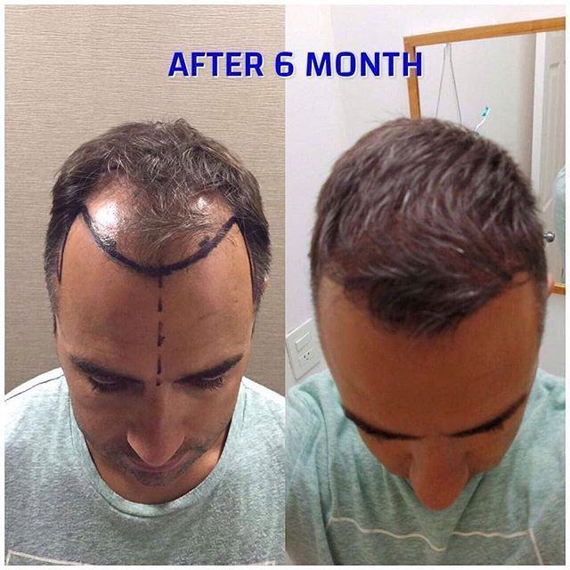 Satisfying Results After Hair Transplant Post Op 6 Month For