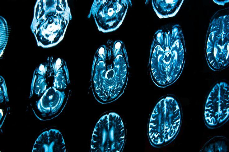 Remembering Henry Molaison | Brain Blogger