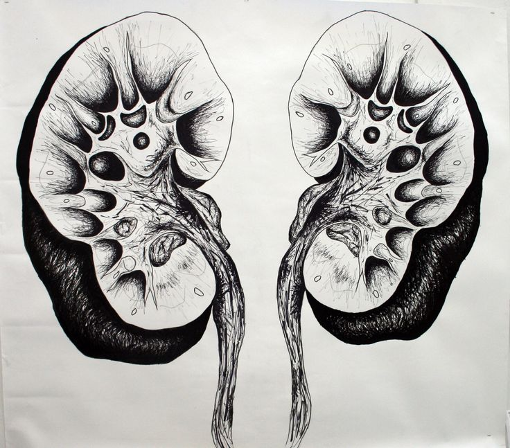 Cut Open Kidney Drawing - Pen (3 meters by 2 meters)