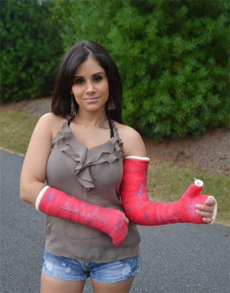 Double Arm Cast 1 Short arm cast (boxer) and one long arm thumb spica LATS