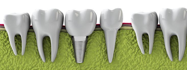 'İmplant uygulamaları',diş çekiminden daha kolay ve ağrısız bir işlemdir. Lokal anesteziyle sadece implant yapılacak bölge uyuşturulur. 15 dakika gibi çok kısa bir sürede 'İmplant' istenilen yere yerleştirilir. 2,5 ay gibi kısa bir sürede çene kemiği ile bütünleşmesi beklenir.Bu sürede olumsuz ve farklı hiç bir durum yaşanmaz.Sonra 2.aşama başlar, ölçü alınır, 5-6 gün gibi kısa bir sürede üst yapısı da yerleştirilir.Bu uygulama diğer tedavi yöntemlerine göre hem estetik hem de çok daha…