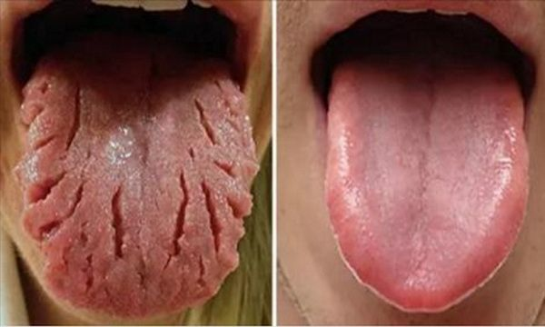 Did you know that the tongue is like a barometer to your body's health and…
