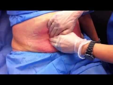 La Dra. Lázaro de la clínica Dermitek nos explica en este vídeo en que consiste el tratamiento de criolipólisis con sistema CoolSculpting de Zeltiq y cómo se queda inmediatamente después del tratamiento. Más Información en http://www.dermitek.com/tratamientos/criolipolisis .