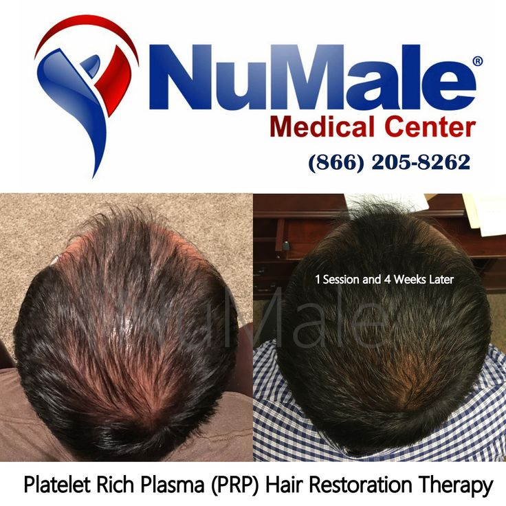 Platelet Rich Plasma (PRP) Hair Restoration Therapy.  Use Your Body's Own Plasma Fast Results Affordable and Cost Effective No Scarring  No Medications  Schedule Your Consultation  (866) 205-8262