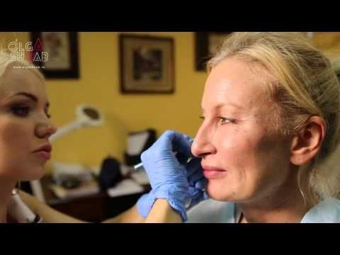3D-Facial Contouring and Volumization. Бьютификация лица.