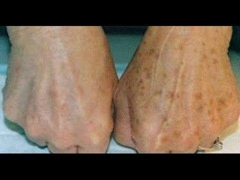 Como blanquear la piel y aclarar manchas. Remedio casero. Mascarilla. Diario de Belleza Tv - YouTube