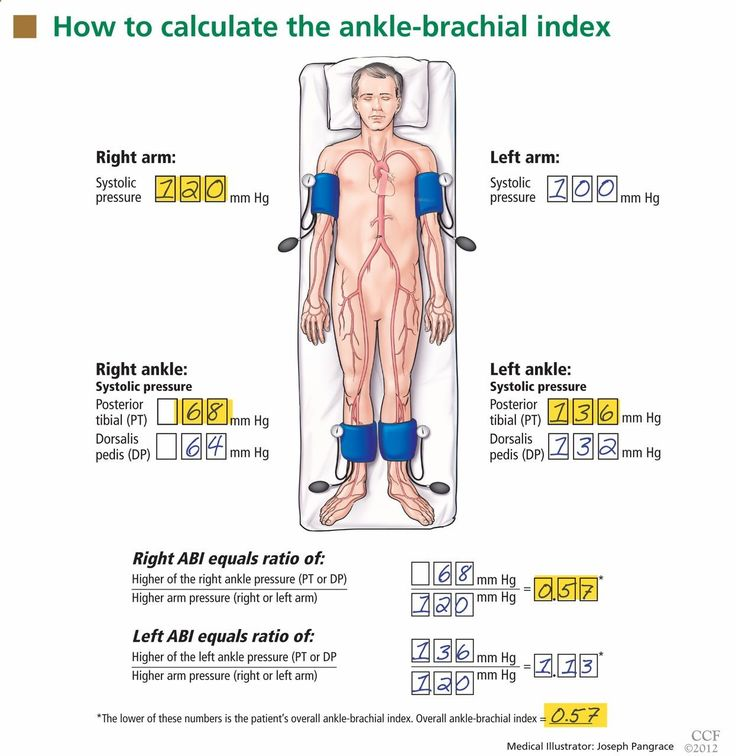 How to calculate the ankle-brachial index (ABI). With the patient positioned supine with the ankles and arms at the level of the heart, a health care provider measures the blood pressure in all four limbs using a hand-held Doppler device with a blood pressure cuff and sphygmomanometer. For a standard ankle-brachial index measurement in clinical practice, the higher of the two ankle pressures measured at the ankle is used as the numerator and the higher of the two arm pressures is used ...