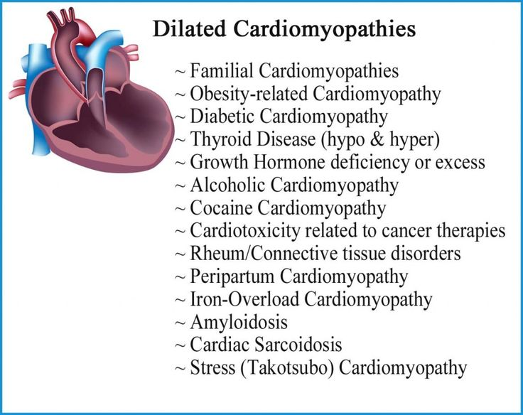 Dilated Cardiomyopathies. copy