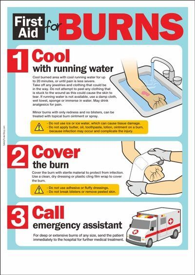 First Aid for Burns - Infographic