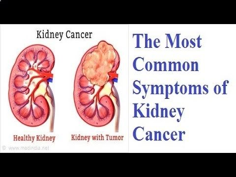 The Most Common Symptoms of Kidney Cancer – Healthy Life #cancer #Common #healthy #Kidney #Life #Most #Symptom