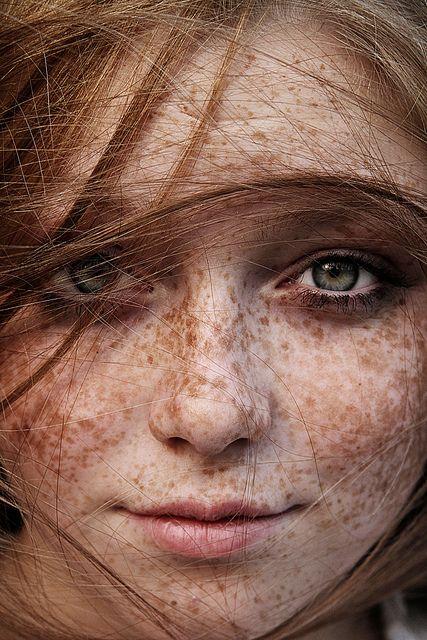 Freckled Face by drshoman2009, via Flickr