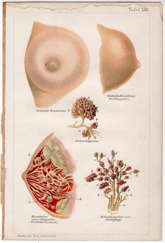 TITLE : MEDICAL BREAST MAMMARY GLAND DISEASES  DESCRIPTION : an antique anatomy lithograph - depicting views of the female breat  - taken from an illustrated German series on new methods of healing or medical treatments - a page of descriptive text [in German] is included with each