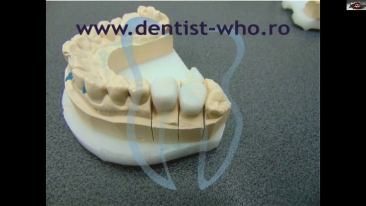 coroana zirconiu ...   http://www.dentist-who.ro