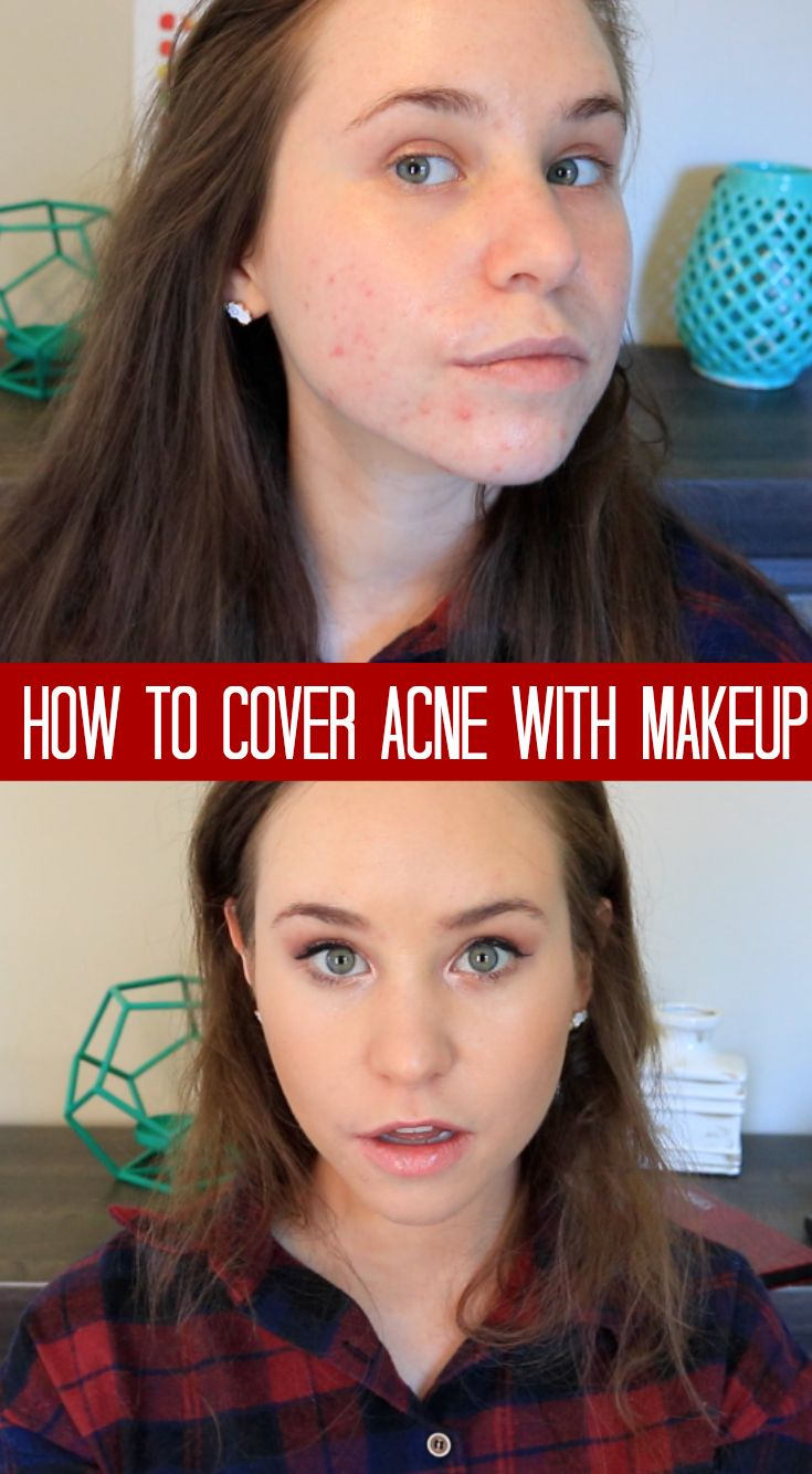 How to cover acne with makeup! Acne coverage foundation routine. #acne #makeup