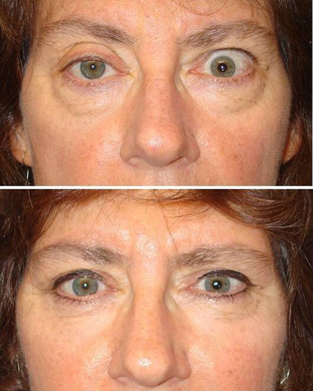 how to fix droopy lower eyelid