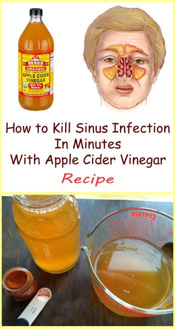 You can try and treat the symptoms of sinus infections with lots of different medicines, but there's no guarantee that you'll succeed. However, if you decide to use apple cider vinegar, you will ease the ache in a safe and effective way.