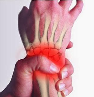 Top 7 Tips To Relieve Wrist Pain | MedReeh