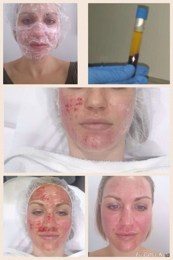 Facial bump growth and laser treatment