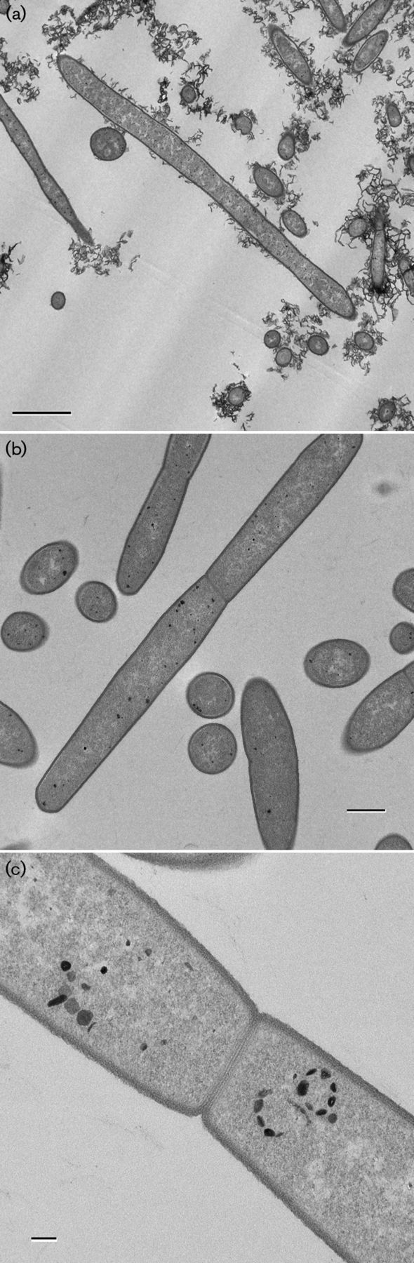 Stomatobaculum longum  [000.009.338]
