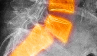Spondylolisthesis means that a bone of the lower part of the spine (a vertebra) has slipped out of position and onto the bone below it.