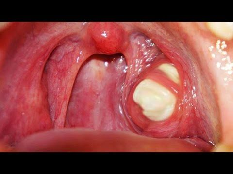 Tonsil stones | Biggest tonsil stone caseum removal - YouTube