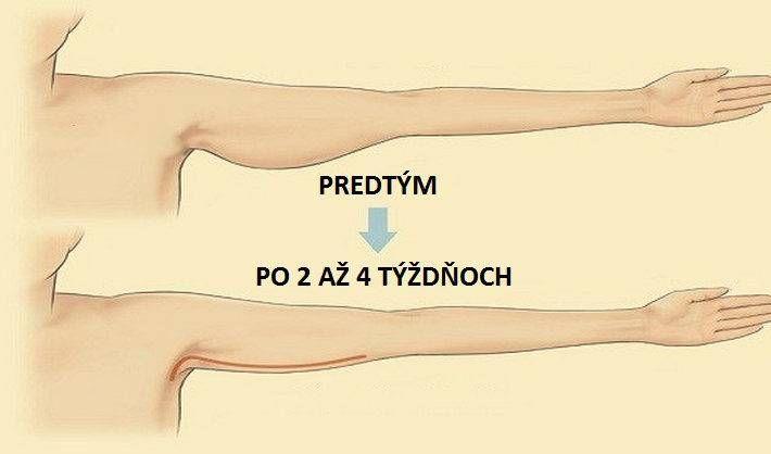 5 CVIKOV na stiahnutie uvoľnených a ovísajúcich paží. Dokonale to pomáha!