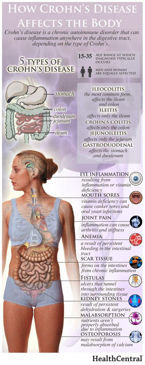 Types of Crohn's Disease (infographic) #crohns #autoimmune #healthcare