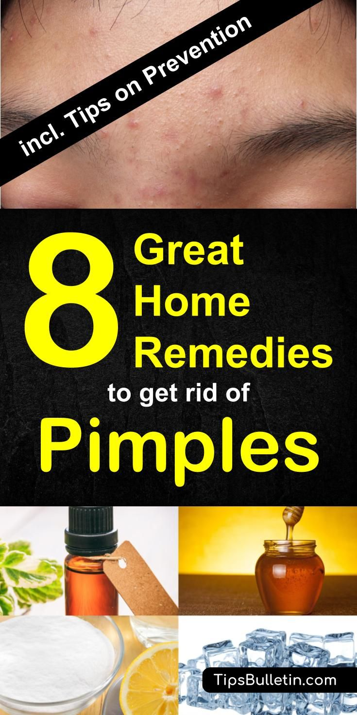 51 Best Tipsbulletin Natural Amp Home Remedies Images On