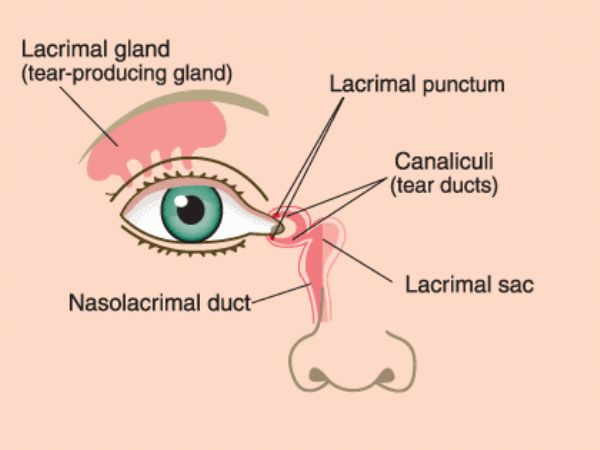 """Gözyaşı kesesi ve gözyaşı kanalları, salgılanan gözyaşını burun boşluğuna ulaştırırlar. Bu kanalların çeşitli nedenlerle tıkanması """"epifora"""" adı verilen göz sulanması sorununa yol açar. Gözyaşı kanalları tıkanan hastalarda belirti göz yaşının devamlı dışarı akmasıdır."""